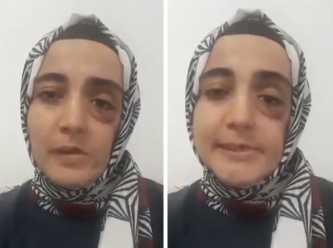 İstanbul Adli Tıp 4. evre kanser hastası Ayşe Özdoğan'dan yeniden rapor istedi